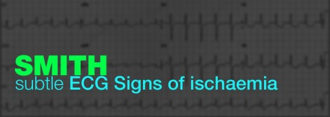 subtle ecg signs of ischemia by smith