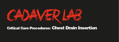Critical Care Proceedures: Chest Drain Insertion