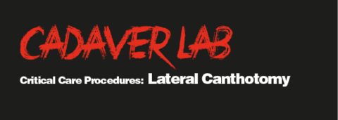 Critical Care Procedures: Lateral Canthotomy