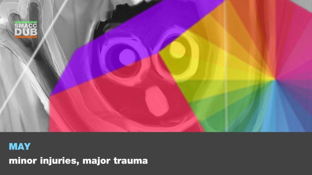 Minor injuries major trauma!