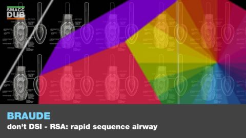Don't DSI…Rapid Sequence Airway (RSA)!
